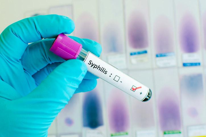 положительный анализ на сифилис